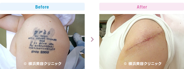 男性の二の腕は、筋肉量が多いので皮膚の伸展性は良くありません。(腕部分)【横浜美容クリニック】