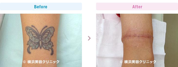 手首の刺青切除は手指への血行に注意して行わなければなりません。(手・手首・前腕部分)【横浜美容クリニック】