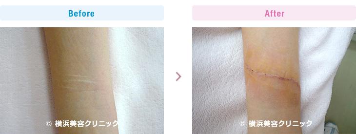 前腕のリストカット跡の切除症例です。(手・手首・前腕部分)【横浜美容クリニック】
