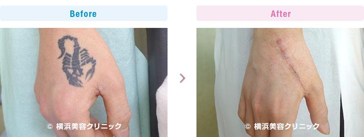 手の甲は皮膚の伸展性が悪く、指の血行や機能に注意して行わなければなりません。(手・手首・前腕部分)【横浜美容クリニック】