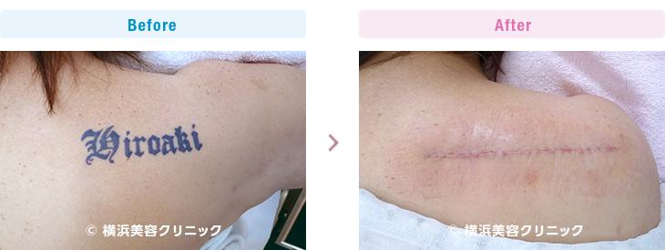 比較的小さな刺青なので、1回の手術で何とか取り除くことが出来ました。(女性・背中部分)【横浜美容クリニック】