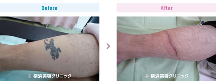 下腿は非常に皮膚の伸展性が悪い部分です。(足首・下腿・大腿部分)【横浜美容クリニック】