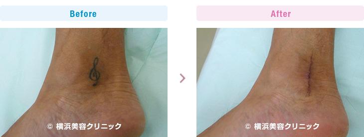 幅が小さい刺青だったので、何とか1回の手術で取り除けました。(足首・下腿・大腿部分)【横浜美容クリニック】