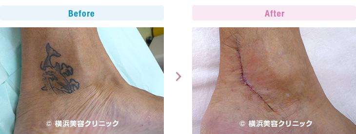 3回の手術で何とか取り除くことが出来ました。(足首・下腿・大腿部分)【横浜美容クリニック】