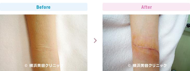 前腕のリストカット跡の切除症例です。(リストカット跡)【横浜美容クリニック】