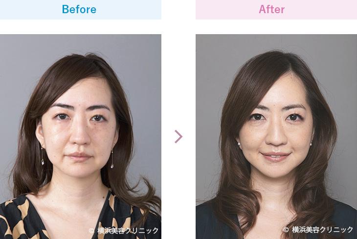 【30代女性】フェイスラインをスッキリさせるにはフェイスリフトが効果的【横浜美容クリニック】