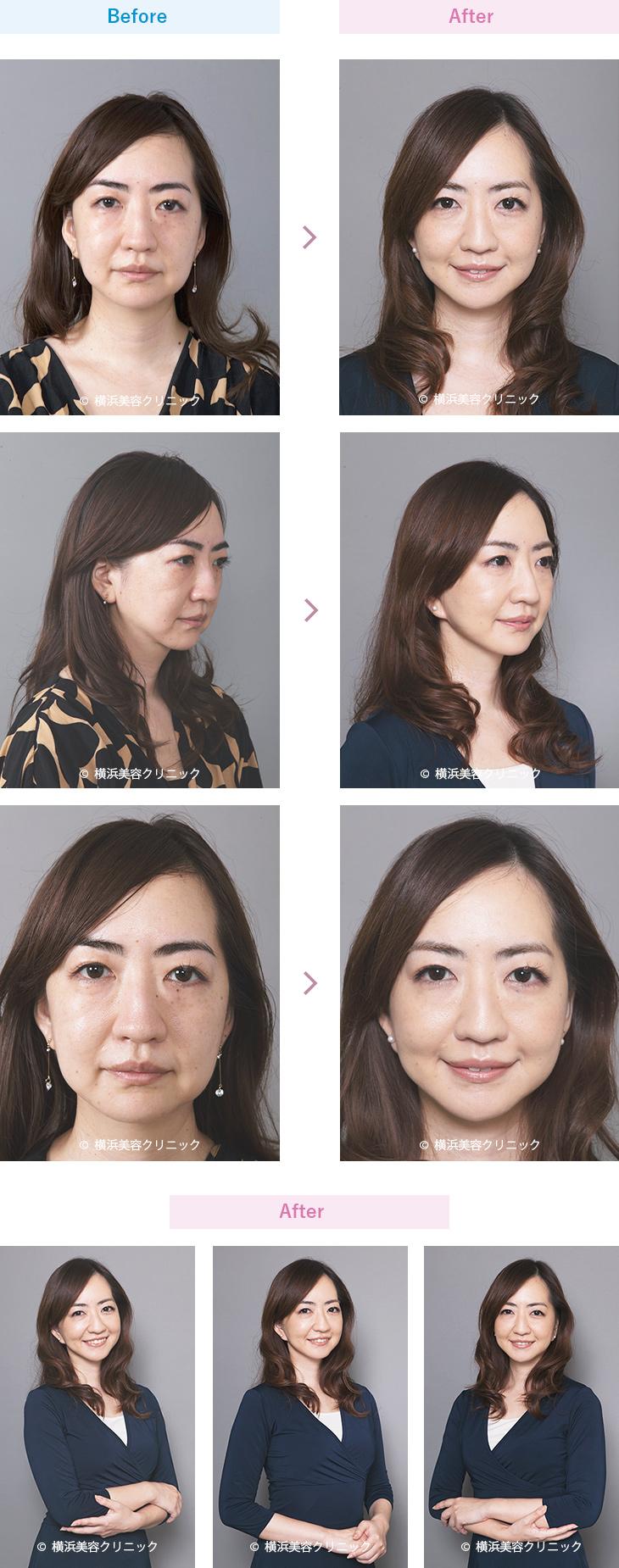 【30代女性】フェイスラインをスッキリさせるにはフェイスリフト(切開リフト)が効果的 【横浜美容クリニック】