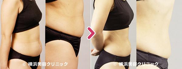 脂肪溶解注射/メソセラピー(ミケランジェロ)