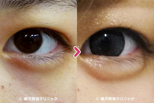 ヒアルロン酸注入による涙袋形成(目袋形成)