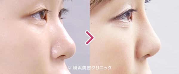 L型プロテーゼ(隆鼻術)