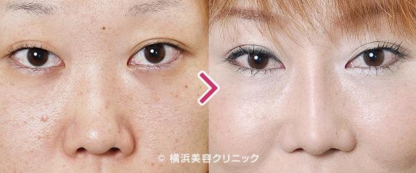 鼻尖縮小術(整鼻術)