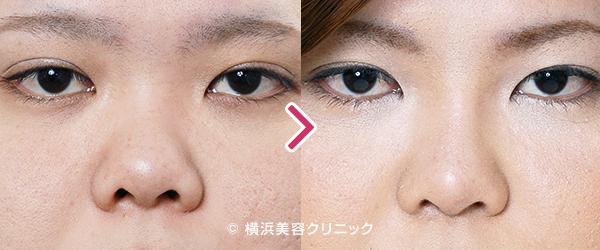 鼻中隔延長術(整鼻術)