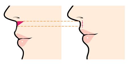 人中短縮術(リップリフト、鼻下短縮術)