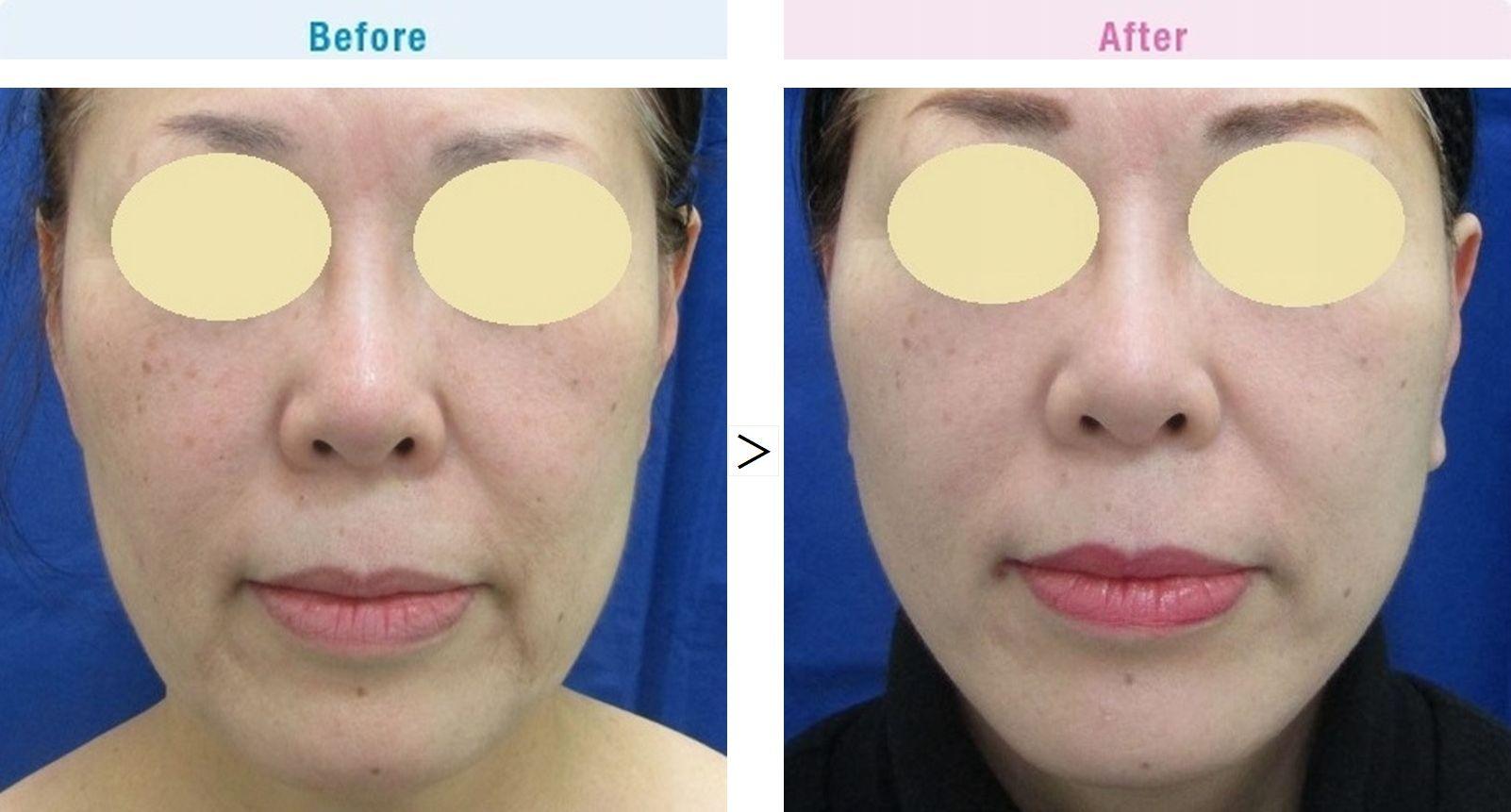 【60代女性】タルミによる四角いフェイスラインを小顔効果があるフェイスリフト(切開リフト)でスッキリと改善。【横浜美容クリニック】