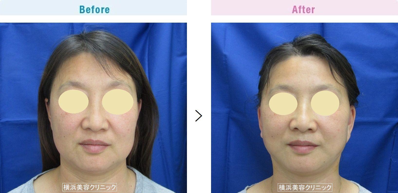 【50代女性】タルミによる四角いフェイスラインを小顔効果があるフェイスリフト(切開リフト)でスッキリと改善。【横浜美容クリニック】