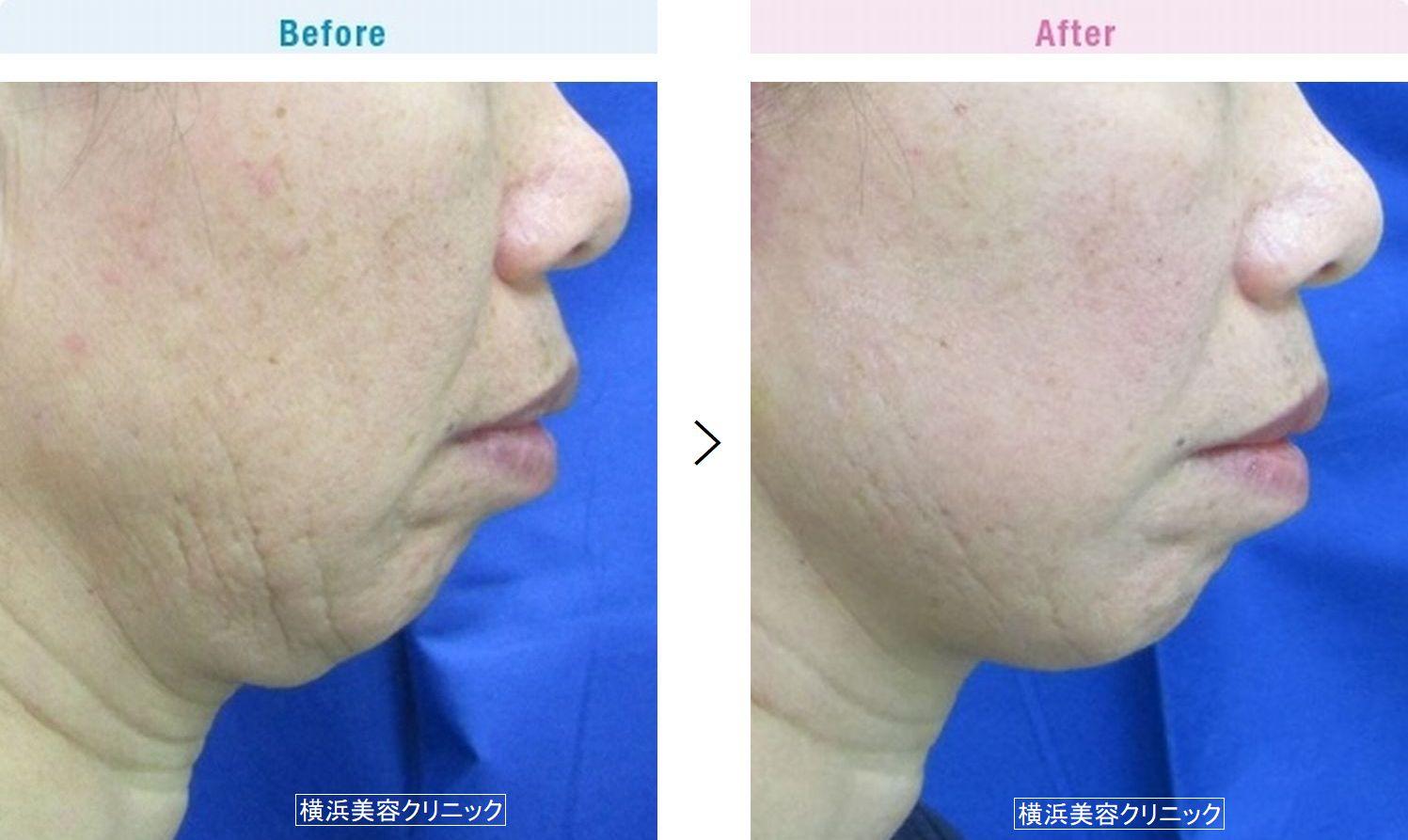 【50代女性】アゴ下から首のタルミに対してはネックリフト(首の切開リフト)が有効です。【横浜美容クリニック】