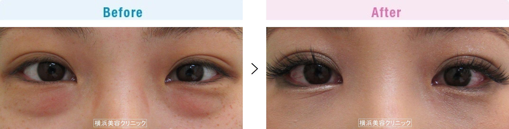【20代女性】くまが気になる方には、切らない目の下のくま取り(脱脂術)が有効です。【横浜美容クリニック】