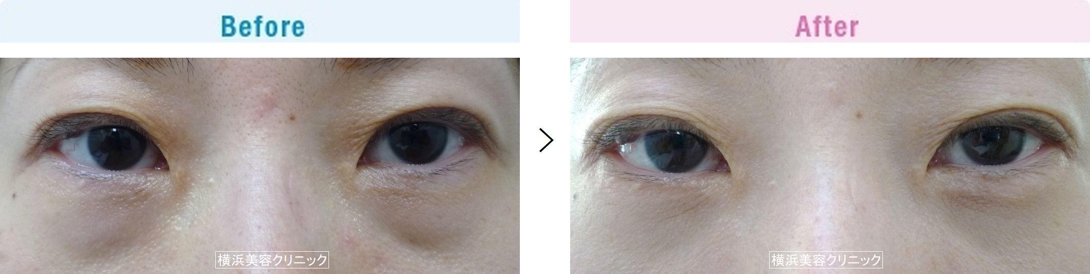 【40代女性】目の下の大きなふくらみも、切らない目の下の脂肪取り(くま取り)で改善します【横浜美容クリニック】